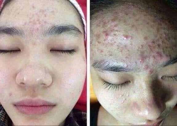 skin rashes solution