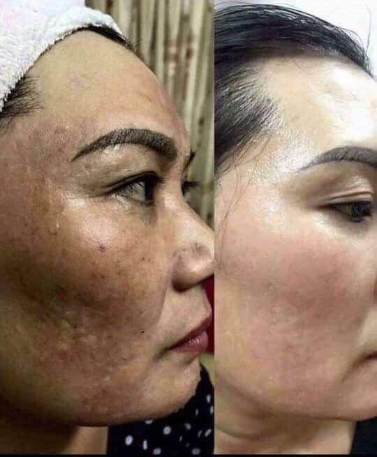 radiance facial